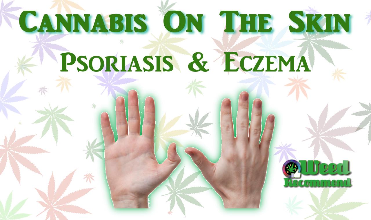 Cannabis On The Skin – Psoriasis & Eczema